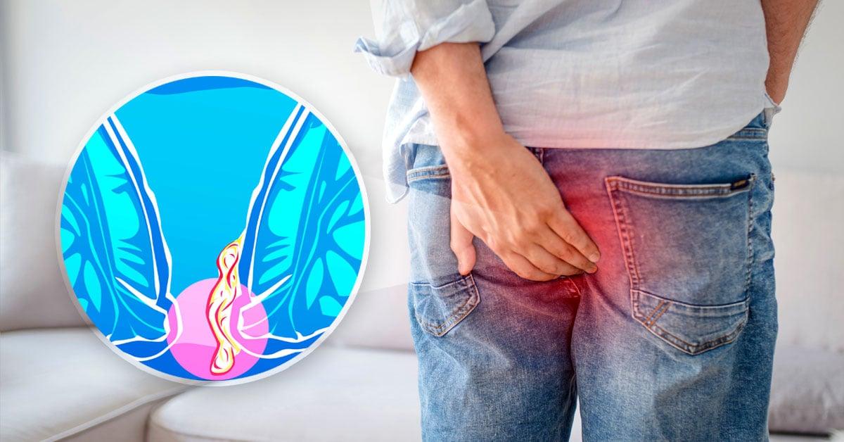 Hemorroides y diarrea cronica