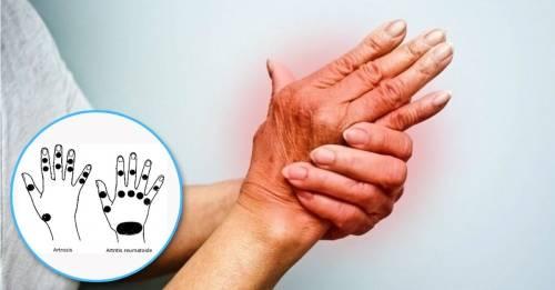 ¿Artritis o artrosis? Dos enfermedades comunes y similares que nunca debes co..