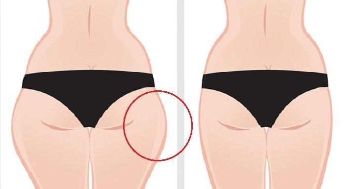 como quitar la grasa de las piernas rapidamente