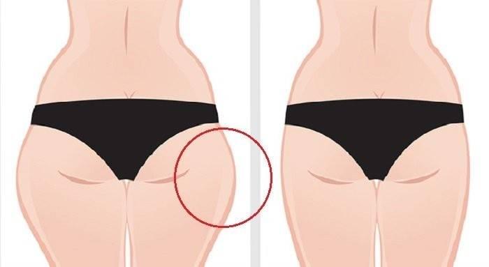 Cómo reducir tus chaparreras (o pantalón de montar) sin ejercicio