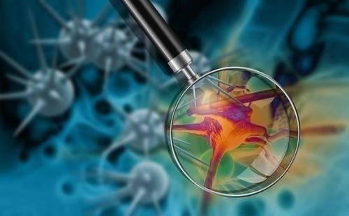 Inventan un test de sangre que detecta 8 tipos de cáncer
