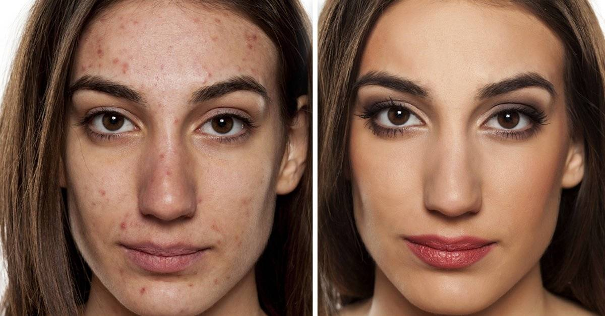 Así es como la contaminación envejece tu cara y lo que puedes hacer para combatirla