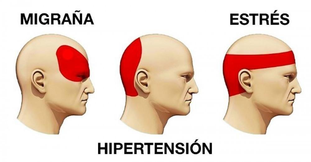Baja porque parte de la cabeza la duele