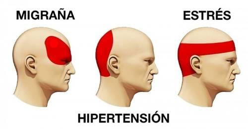 Resultado de imagen para dolor de cabeza