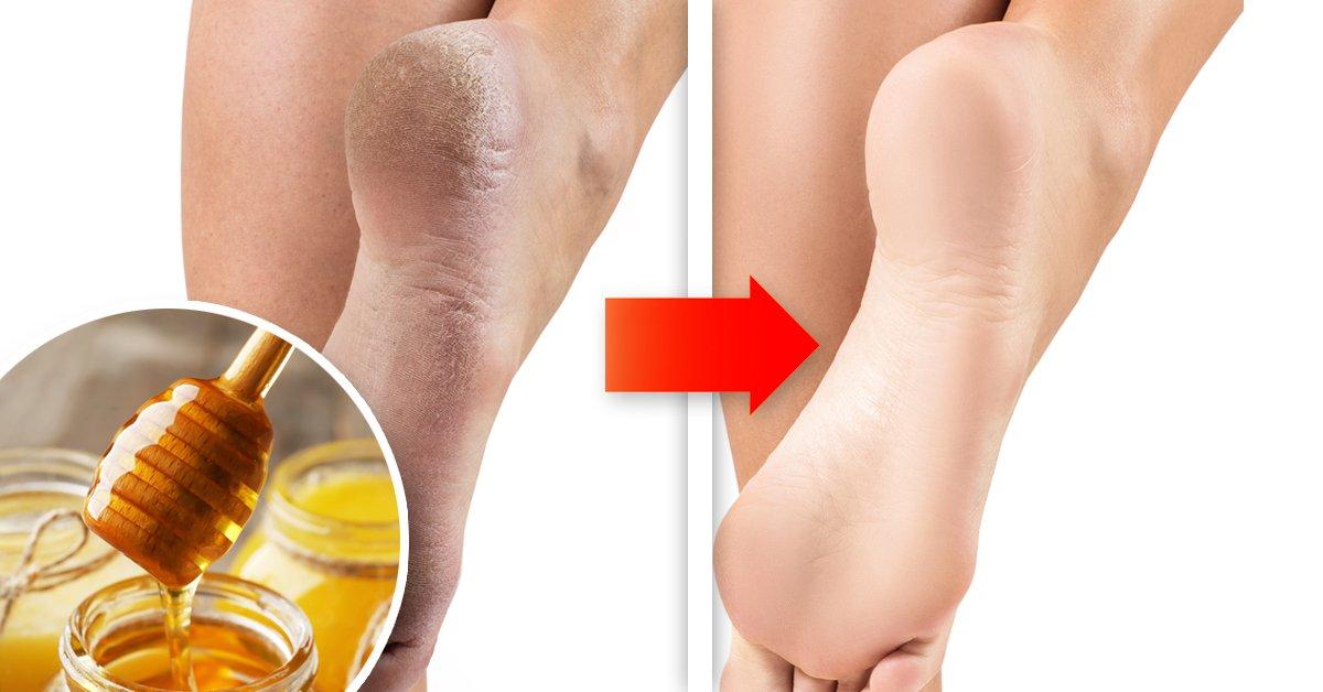Como suavizar los pies y talones