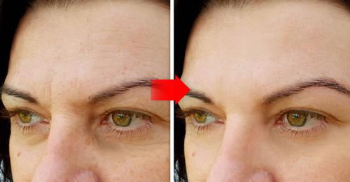 5 hábitos cotidianos que hacen que tu rostro envejezca más rápido
