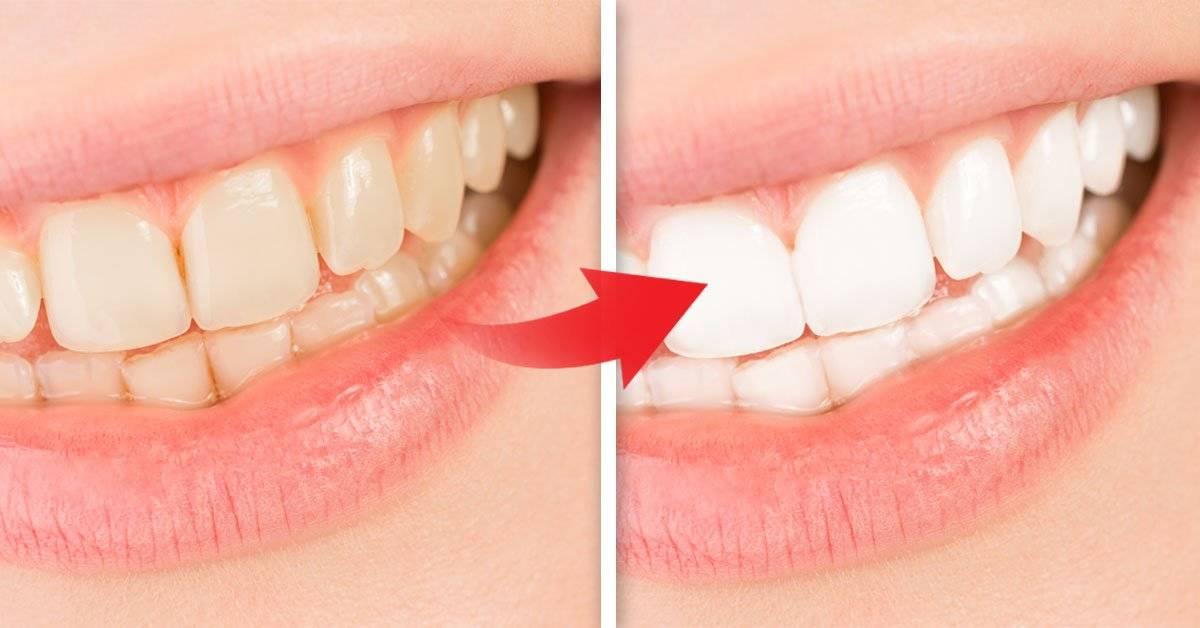 5 ingredientes naturales que blanquearán tus dientes sin mucho esfuerzo