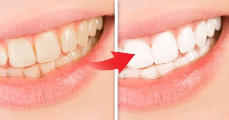 5-ingredientes-naturales-blanquear-dientes-al-instante