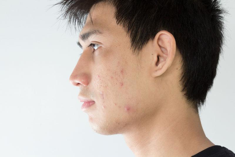 como limpiar la cara de espinillas