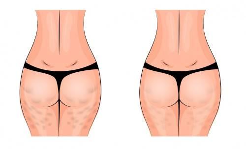 6 ejercicios que te ayudarán a reducir la celulitis en 2 semanas