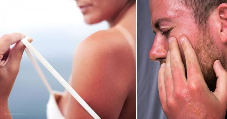 Cuándo una quemadura de sol debería llevarte al médico o preocuparte