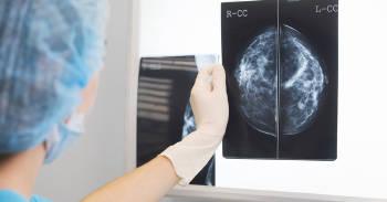 El primer caso de cáncer curado sin usar quimioterapia