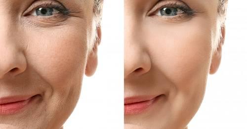 Recetas que pondrán fin a la flacidez de todo el rostro