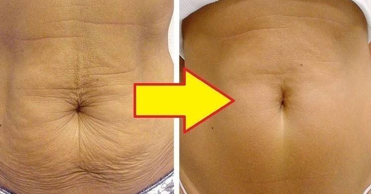 Bajar de peso y piel flacida