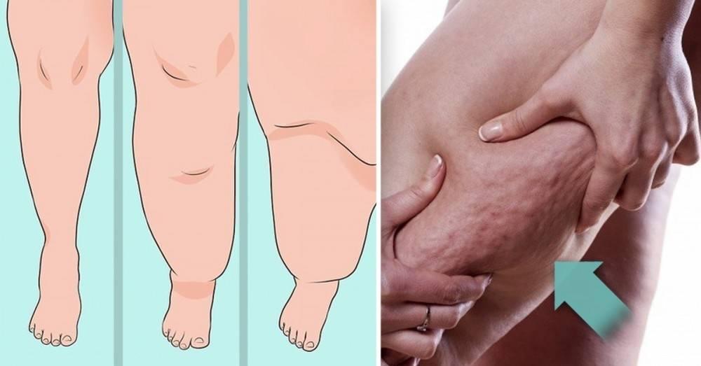 Lipedema: la confunden con obesidad y celulitis, pero esta rara enfermedad afe..