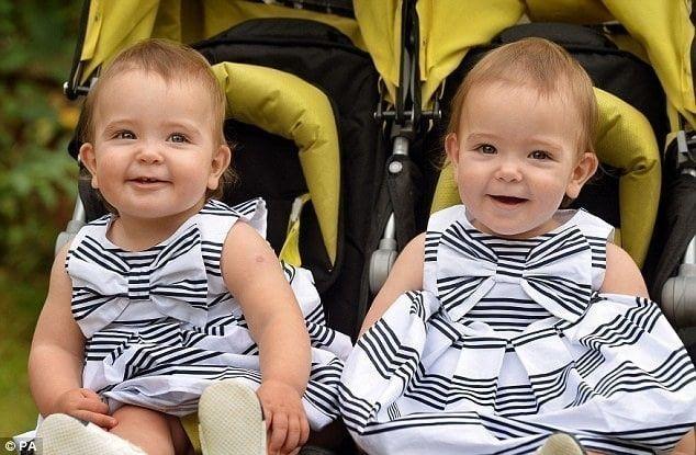 gemelas siamesas
