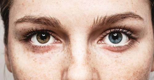 ¿Por qué cambian de color los ojos de algunas personas?