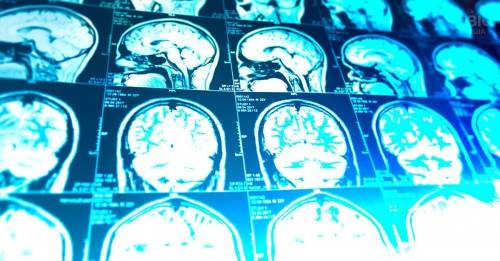 ¿Existe o no una epidemia de Alzheimer? Un médico lo explica