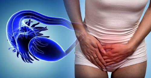 Qué es el síndrome de ovario poliquístico