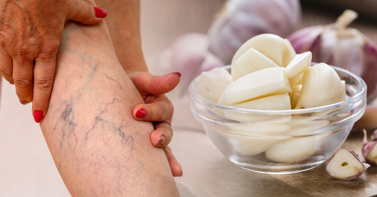Como curar las varices con remedios caseros