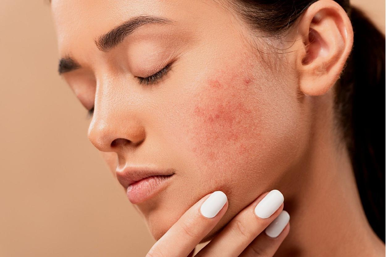 Piel sin acné en una semana: ¿cómo lograrlo con remedios caseros y naturales?