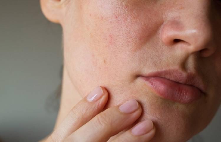 piel poros