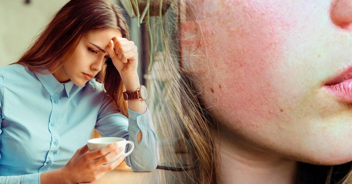 5 maneras en las que tu piel demuestra que estás estresado