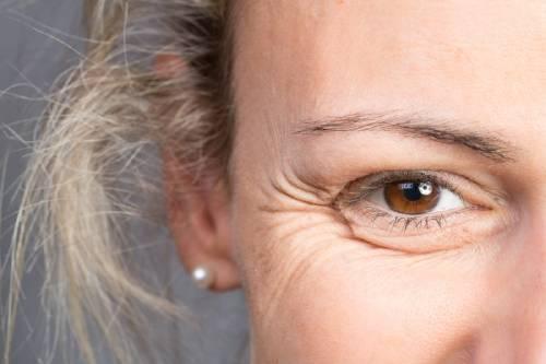 Lo que las arrugas revelan sobre tu salud