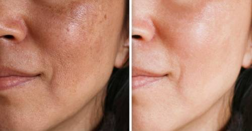 Ayuno bueno para la piel