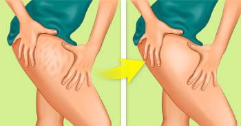 ilustracion de celulitis en la pierna de una mujer antes y despues de un tratamiento