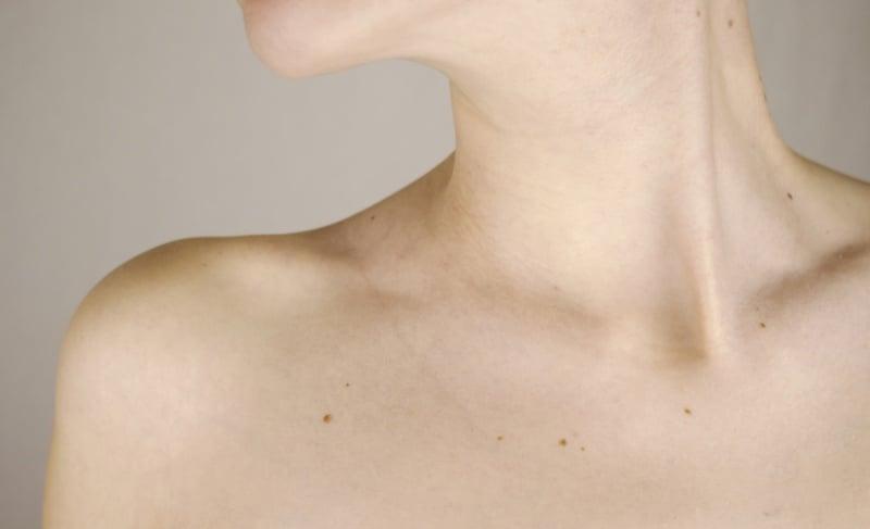 como perder grasa del cuello