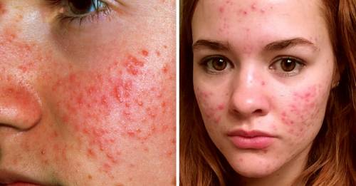 ¿Cuál tipo de acné tienes y cómo puedes tratarlo naturalmente?
