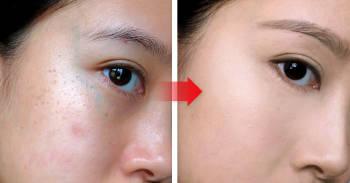 comparacion antes y despues de la piel de una mujer despues de un tratamiento