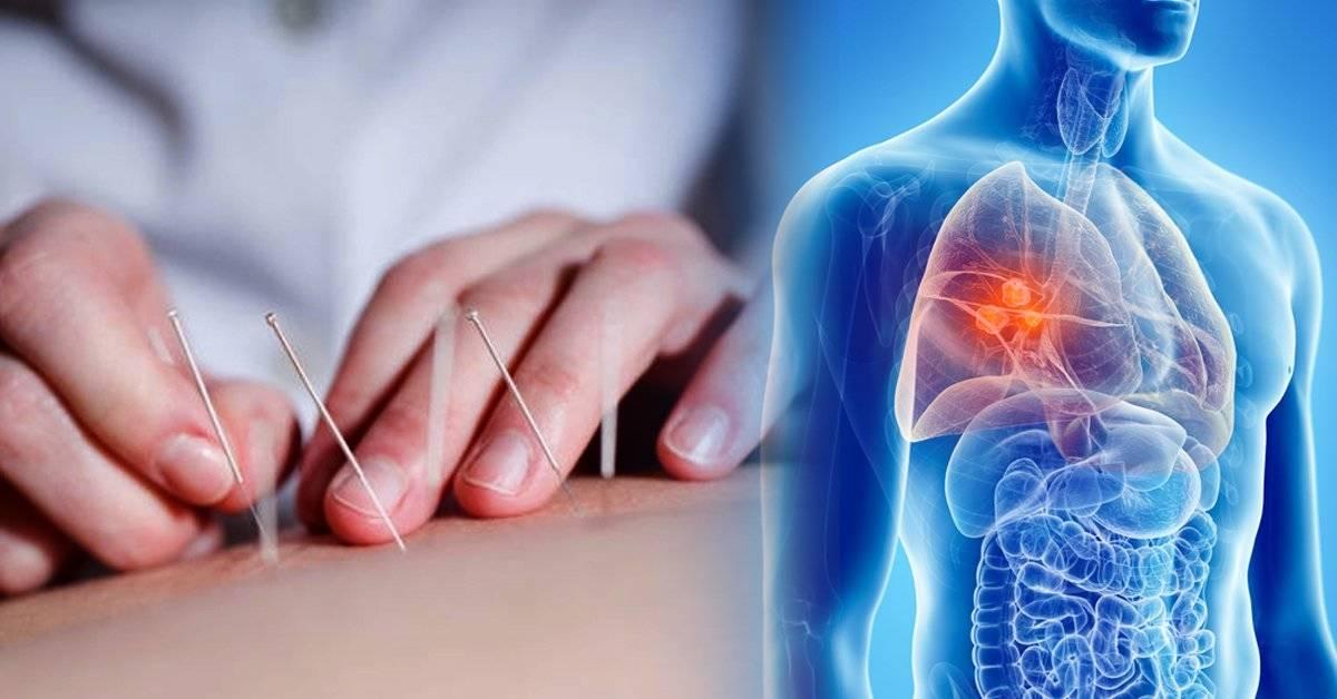 Los beneficios de la acupuntura para pacientes con cáncer