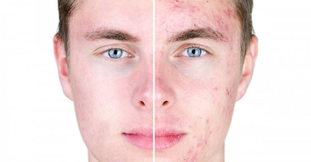 Lo que significa el acné en diferentes partes del rostro