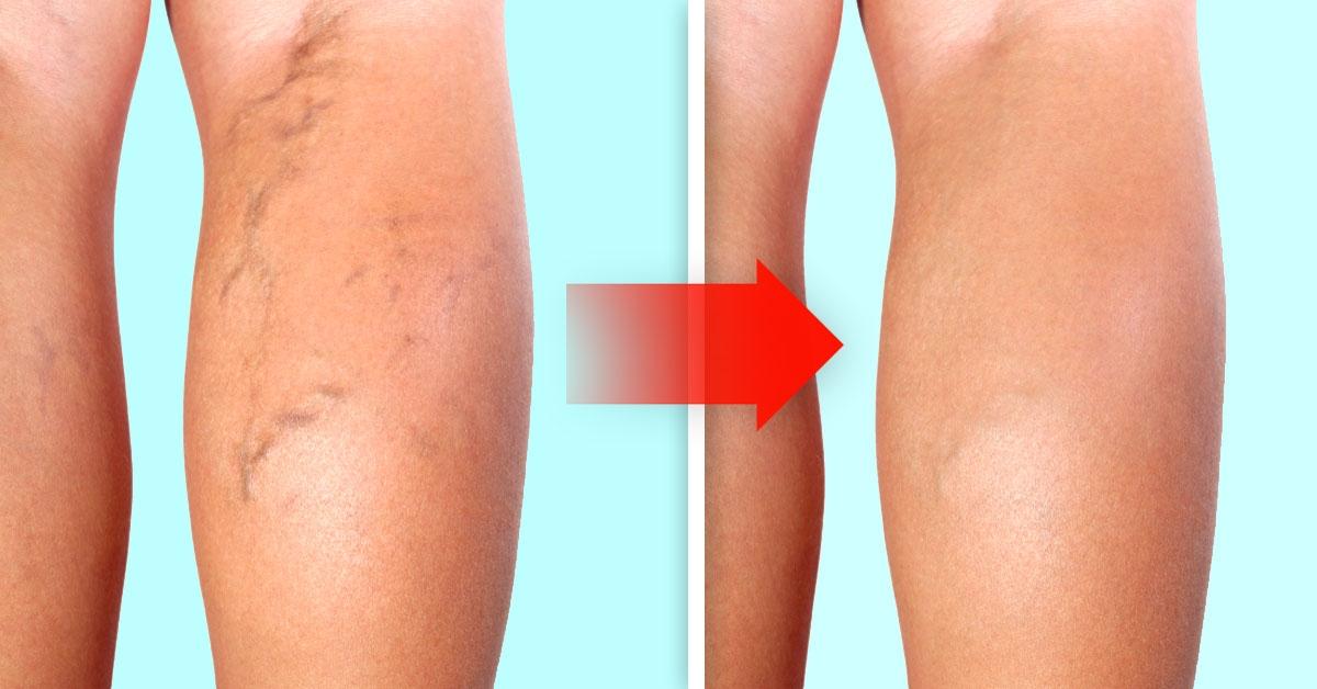Varices piernas precio eliminar