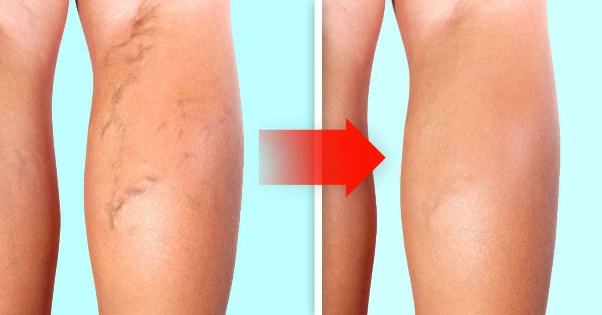 Los mejores ejercicios para eliminar las varices en las piernas
