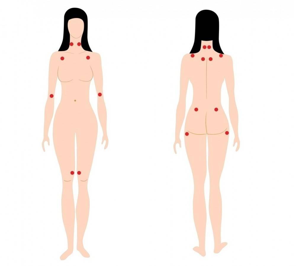 Fibromialgia y gluten: una relación clave para el tratamiento