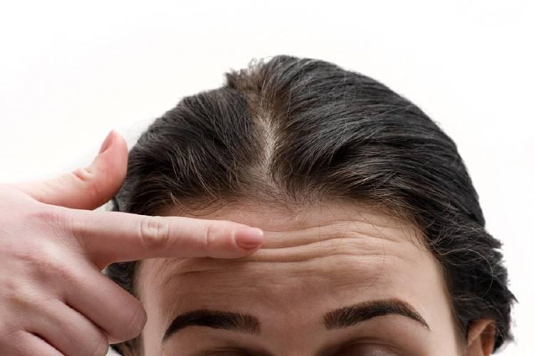 arrugas fruncir ceño