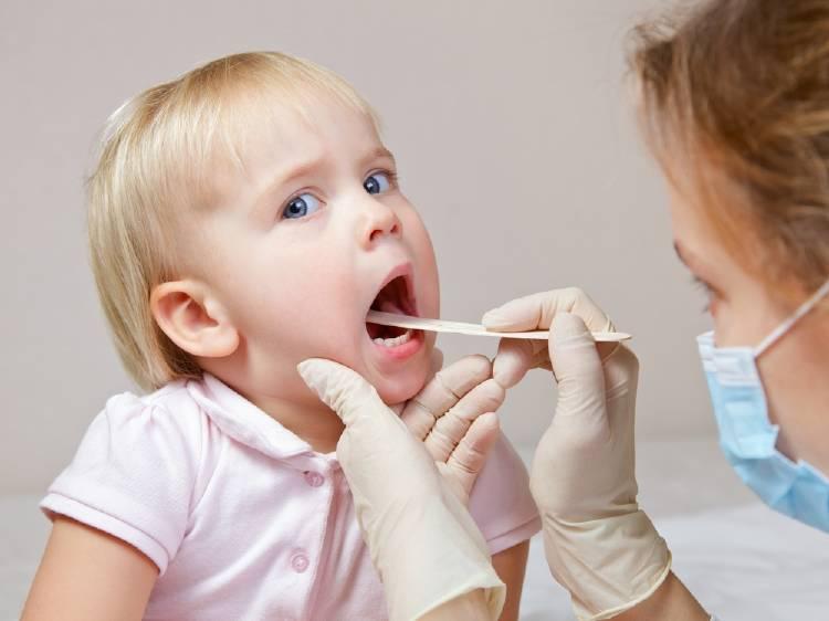 Brote de sarampión: afecta a niños vulnerables