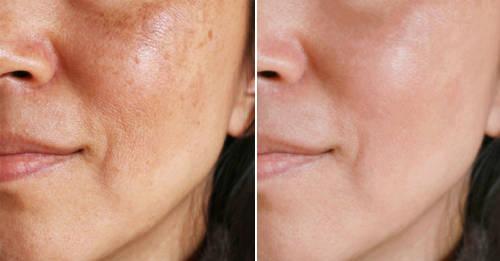 Limpieza con cúrcuma y jengibre para atenuar las manchas del rostro