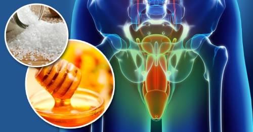 7 alimentos que causan mal olor en los genitales masculinos