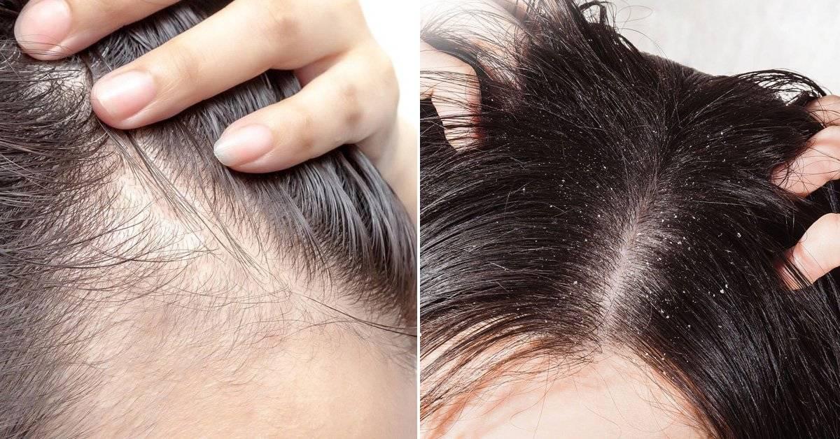 83164f353f1 El significado emocional de los problemas del cabello según la ...