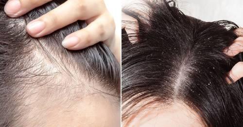 Sensación de dolor en el cuero cabelludo