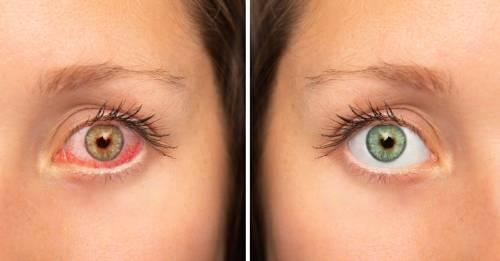 Si sientes un permanente ardor en los ojos, esta podría ser la causa
