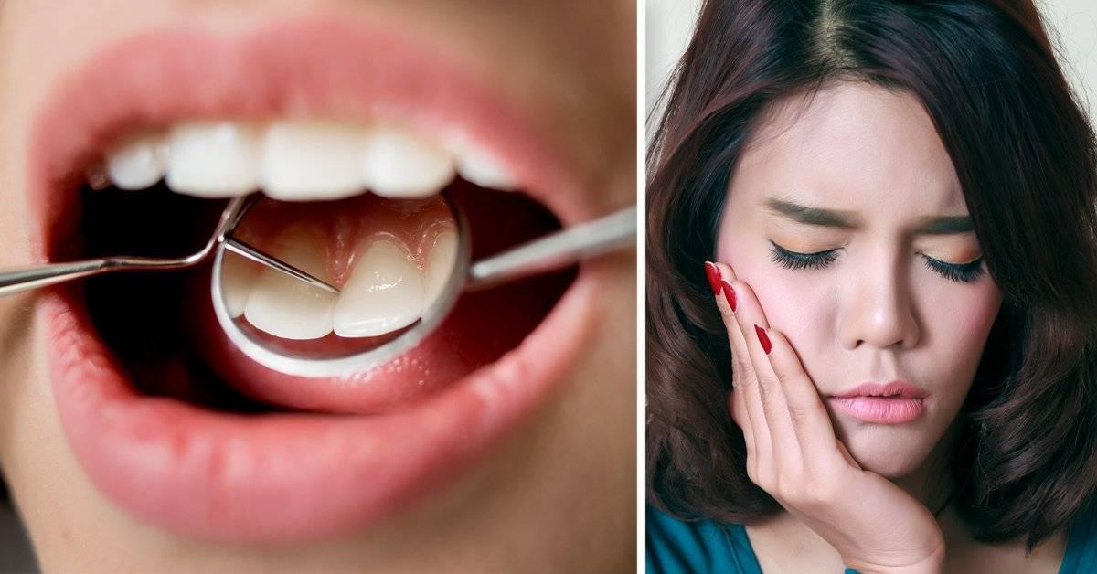 Remedio infalible para terminar con la sensibilidad en los dientes