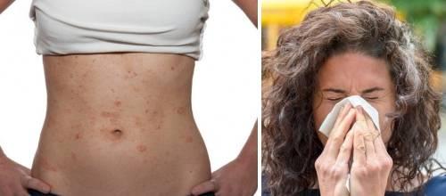 Esta información te servirá si tienes alergias que no has podido solucionar