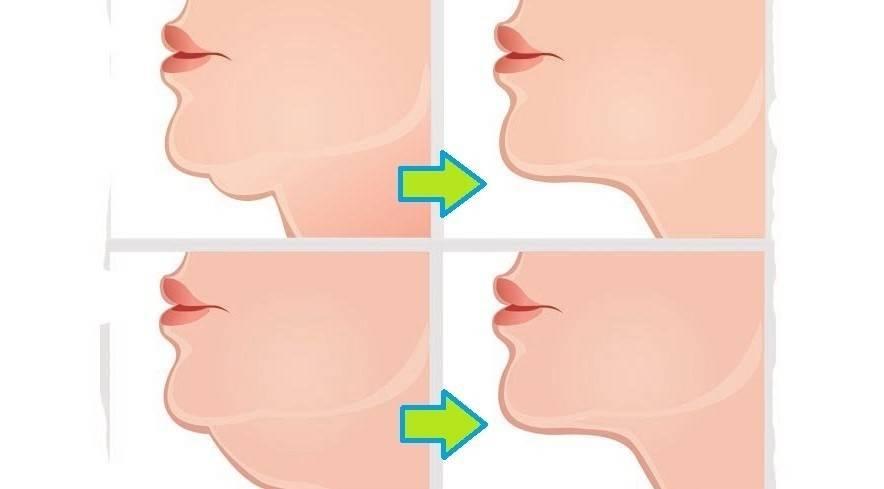 Efectivos ejercicios para tonificar el cuello y reducir la papada