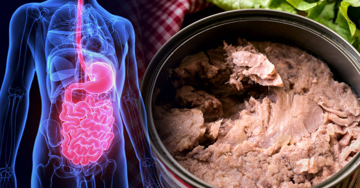 qué comer en caso de prostatitis crónica