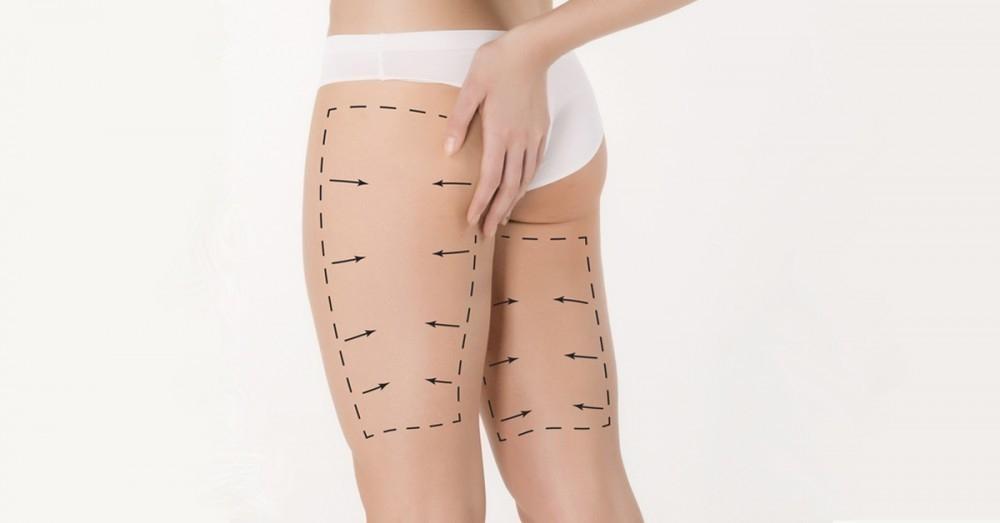 Como reducir musculo de las piernas